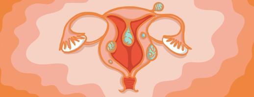 Uterine Fibroids and Endometriosis image