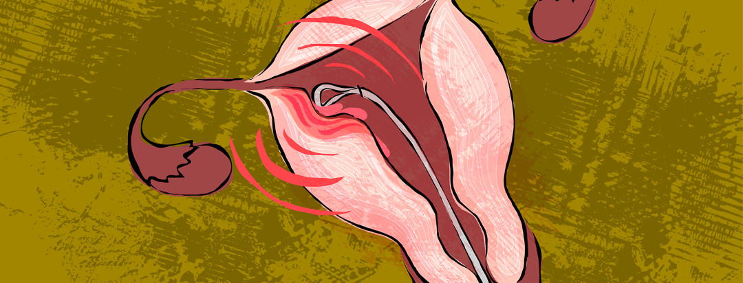 A uterus is being scraped with a medical tool, while pain pulsating graphics are emanating from the region.
