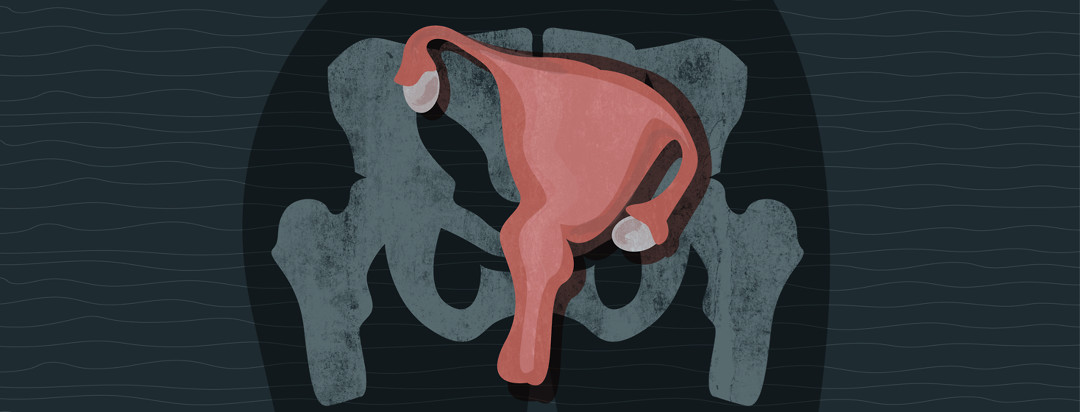 A uterus is shown with a pelvis in the background. The uterus is severely leaning to the right.
