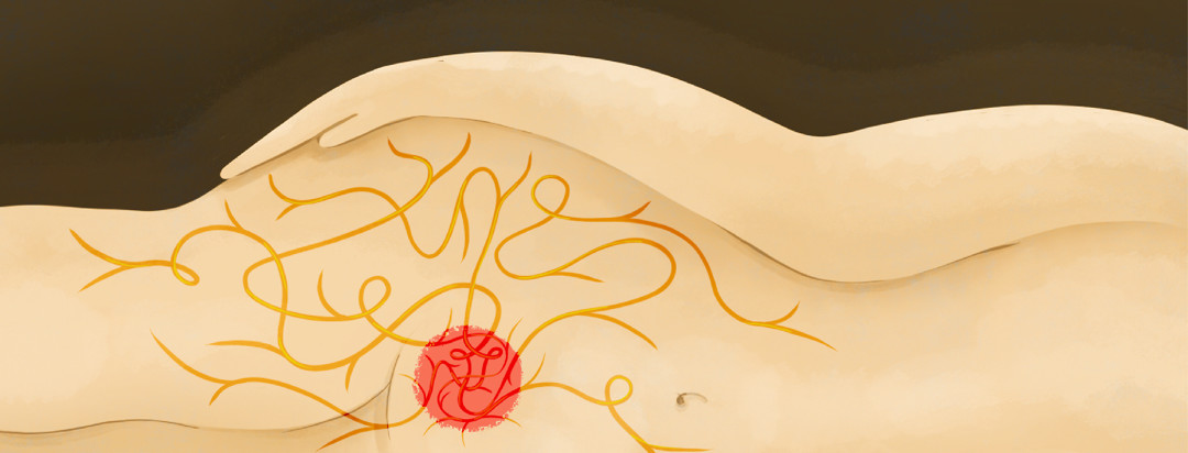 A woman is laying on her side with an internal view of a red orb located at her pelvic region with nerves sprouting from it, carrying pain signals to the hip.