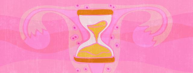 Menopause and Endometriosis image