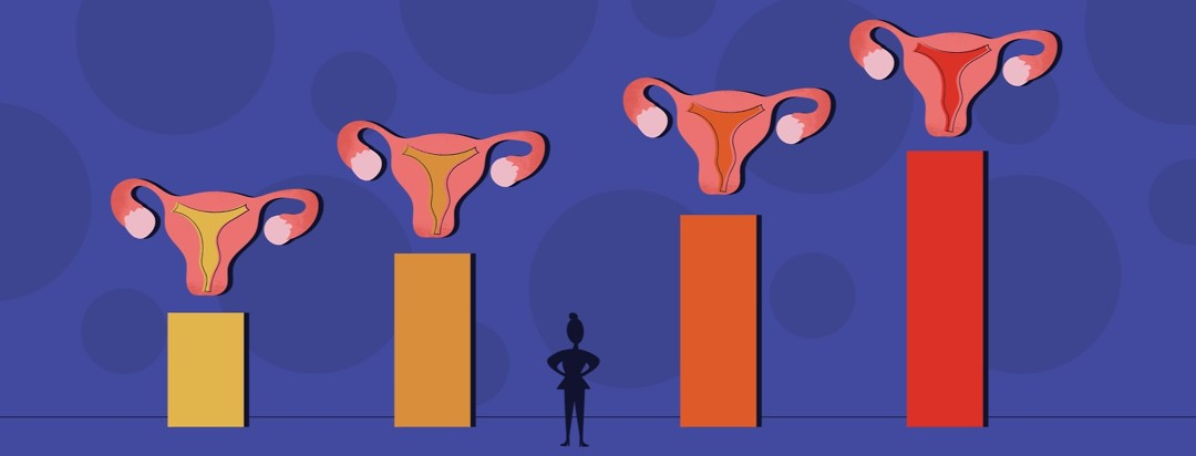 A woman's silhouette standing, looking at four uteri showing the four stages of Endometriosis