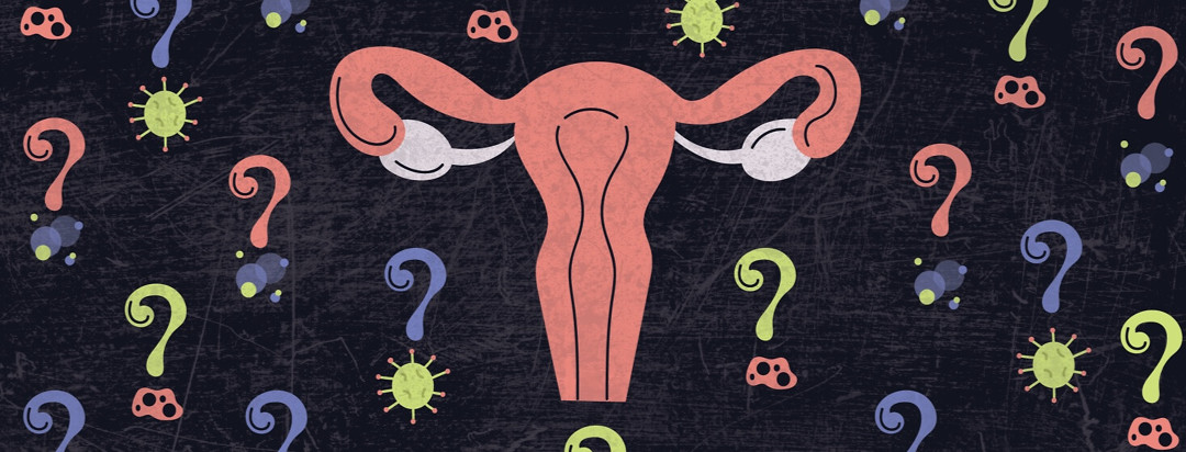 a uterus surrounded by allergen question marks
