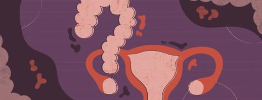The Link Between IBS, SIBO and Endometriosis image