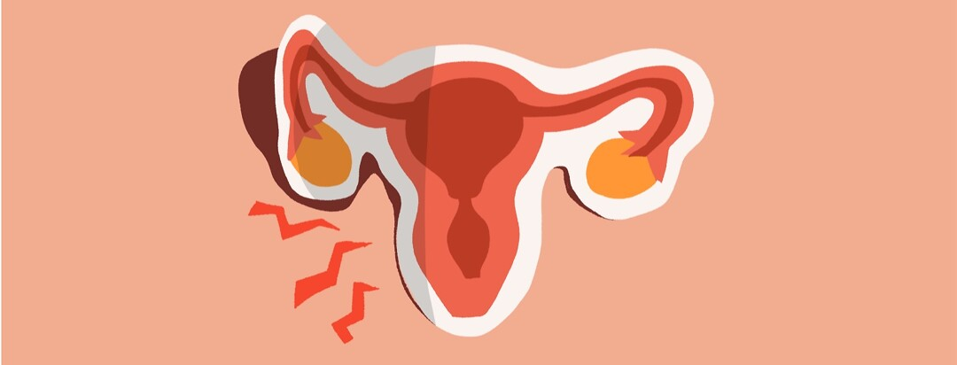 A sticker of a uterus being peeled up, bolts of pain emerge from under it