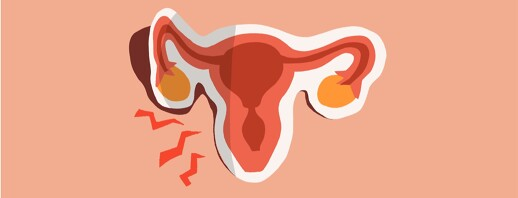 Recurring Endometriosis Post-Hysterectomy image